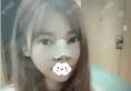 呼和浩特大韩整形假体+鼻翼鼻头缩小+鼻小柱延长综合隆鼻案例