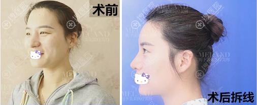 韩旭鼻头鼻翼缩小拆线后对比