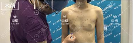 假体隆胸术前设计