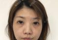 再三对比后我选择上海余天成冯焕做双眼皮提肌无力修复和隆鼻