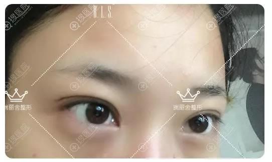 做完双眼皮和开眼角术后30天