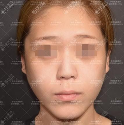 在北京柏丽做半肋鼻综合前