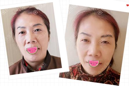 扬州艾菲斯玻尿酸瘦脸除皱联合之后术后效果