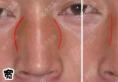 鼻子侧面看挺正面好塌是因鼻梁宽,做了隆鼻后鼻子360度无死角