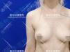 泰州华美赵新房联手韩国车柄勋教授为乌克兰美女做假体丰胸