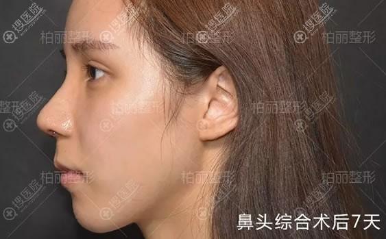 李劲良鼻头综合整形案例7天效果