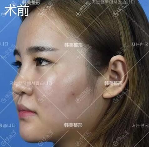 美容院隆鼻失败导致的歪鼻照片
