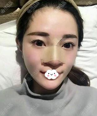 南京光尔美张海霞假体隆鼻术后效果