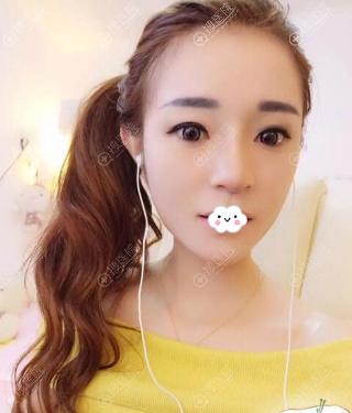 南京光尔美硅胶假体隆鼻术后20天恢复图片