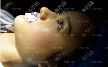 长沙伊百丽双眼皮术后即刻效果