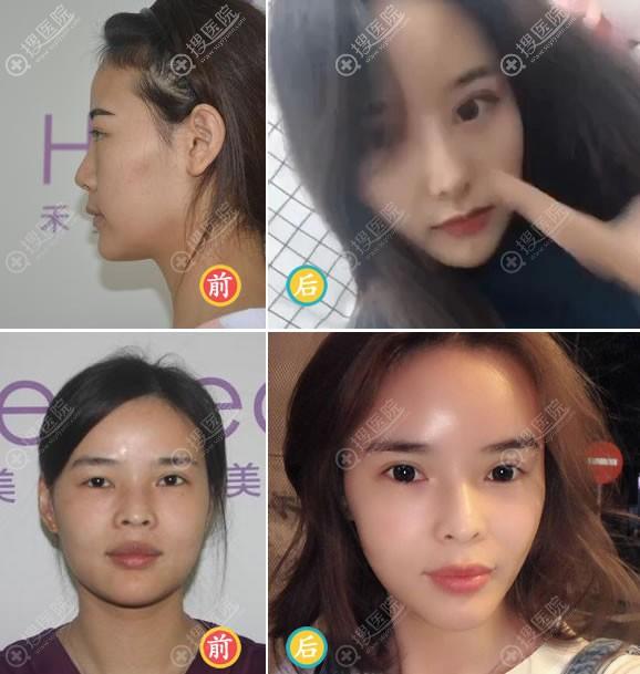 李伟民做双眼皮和隆鼻案例
