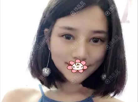 科颜美陈咏玲双眼皮术后一个月