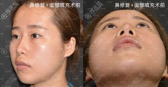 做鼻子整形修复和面部填充前