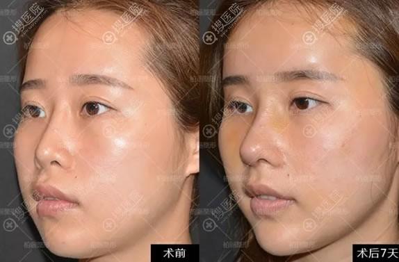 李劲良鼻子整形修复案例7天对比图