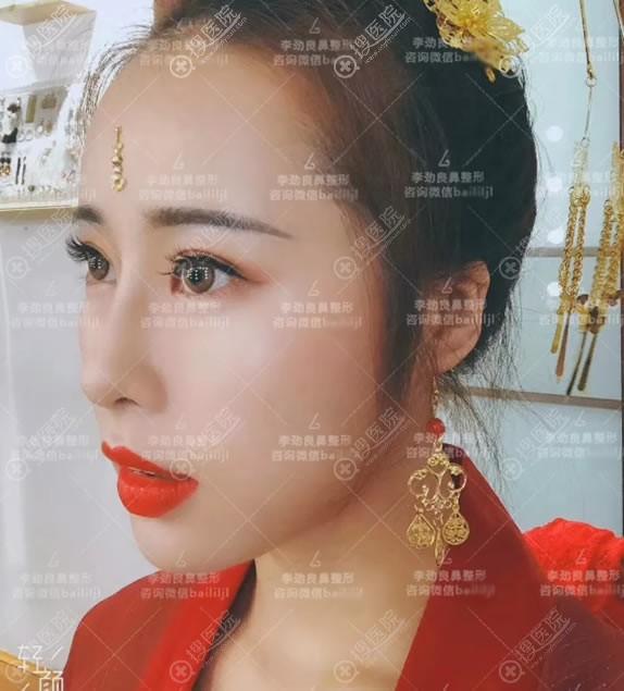 北京柏丽李劲良鼻修复案例4个月效果