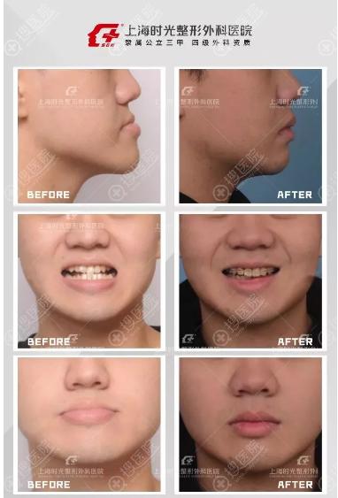 上海时光姚全豊做的双颚手术整形案例