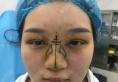奔着朱晓波院长的技术我来到南京柠檬医美诊所做了双眼皮隆鼻