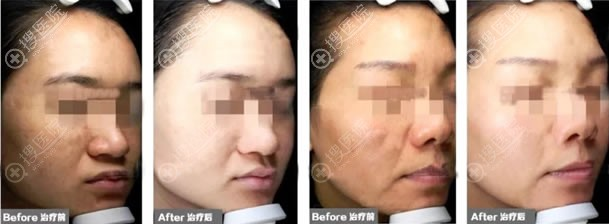 北京三仁注射活肌聚能素案例