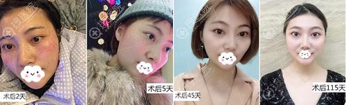 重庆星辰激光祛斑术后3个月恢复照片