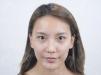 找上海美立方闫磊做完双眼皮和脂肪填充后拿到一份整形价格表