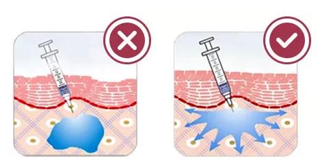 上海华美玻尿酸填充的优势