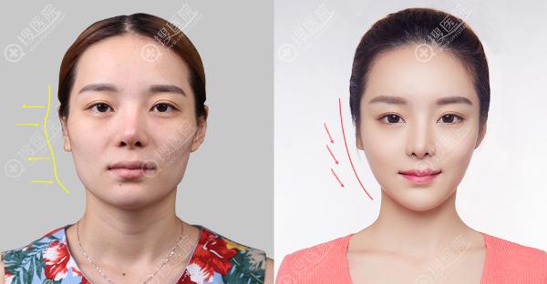 上海华美王荣锡做的纳米脂肪填充案例对比图