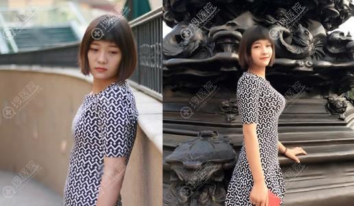 北京玉之光王明利自体脂肪丰胸案例