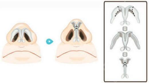 北京丹熙整形医院鼻翼缩小手术