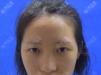 做鼻中隔偏曲手术后找无锡同舟彭建割双眼皮+硅胶隆鼻整形案例