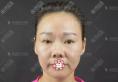 从广场舞大妈到贵妇她只是在深圳雅涵做了综合隆鼻面部脂肪填充