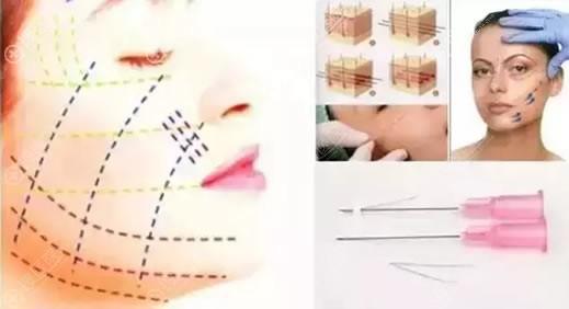 面部线雕手术原理