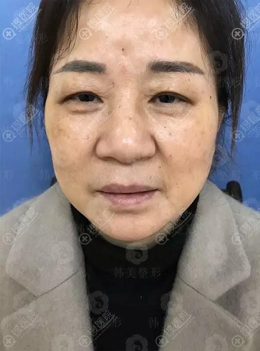 在赣州韩美做面部线雕前