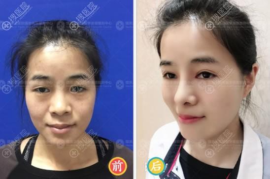 北京煤炭总医院整形美容中心王驰超体隆鼻案例