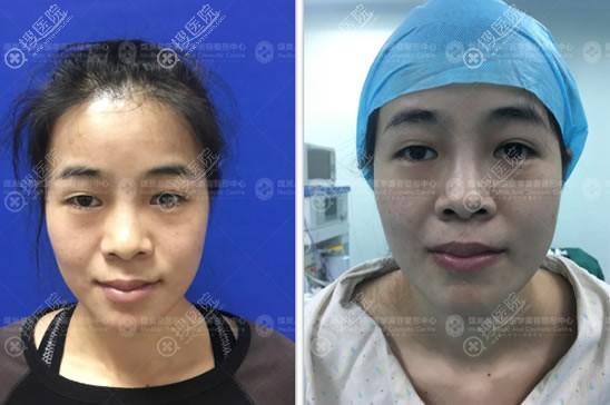 做超体隆鼻手术前