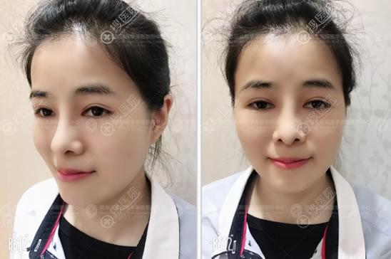 煤炭医院整形科王弛隆鼻双眼皮案例