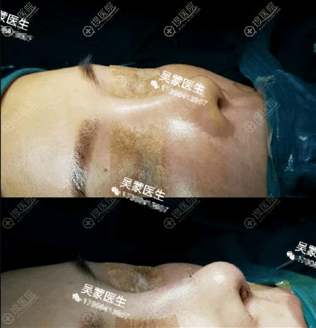 长沙爱思特吴蒙隆鼻怎么样?鼻修复真实案例