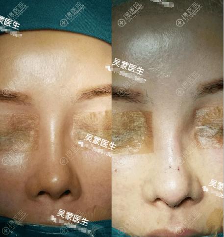 吴蒙奥美定注射隆鼻修复术前术后对比