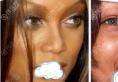 肉鼻妹子在昆明华美美莱黄在弘那做了假体+鼻头缩小综合隆鼻