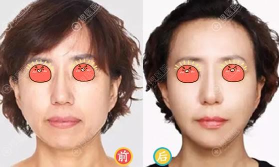 昆明同仁整形PRP改善皮肤松弛案例
