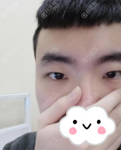 东莞知美割双眼皮怎么样?黄双闻眼综合案例与2019优惠价格