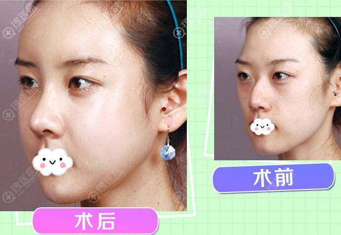 东莞华美膨体鼻综合隆鼻术前术后案例对比图