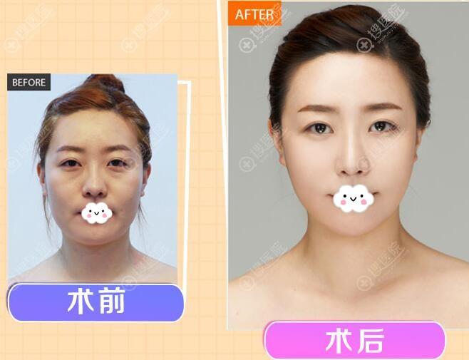 东莞华美自体脂肪面部填充案例效果对比图