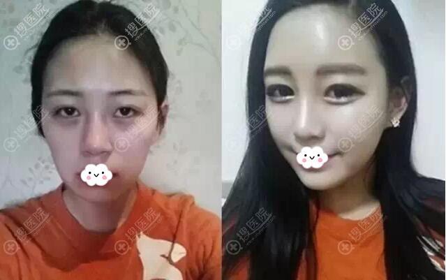 西安西美(西京)整形外科自体脂肪填充真人案例