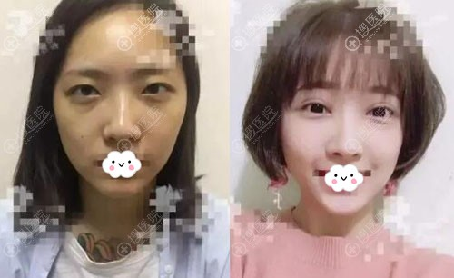西安西美(西京)整形外科双眼皮+开内眼角案例对比