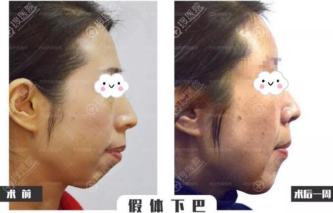 西安西美(西京)整形外科假体垫下巴案例前后对比