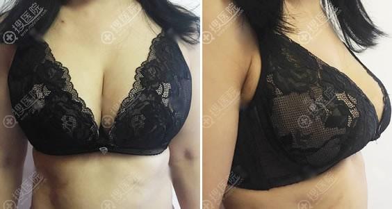 胸部奥美定取出和脂肪隆胸15天后