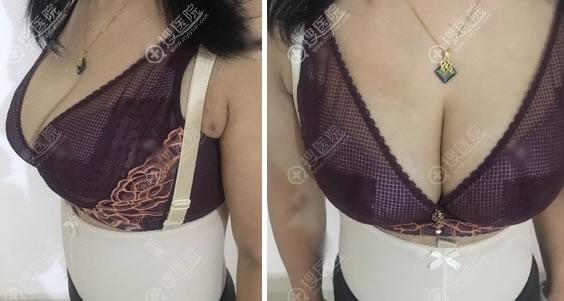 北京京美刘成胜清奥和隆胸案例