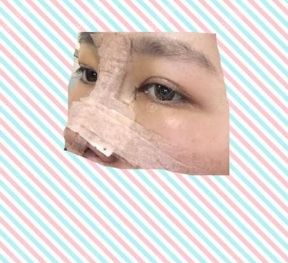 刚做完隆鼻和双眼皮手术照片