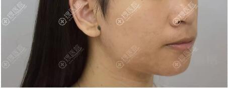 深圳香蜜丽格祛痘治疗后效果展示
