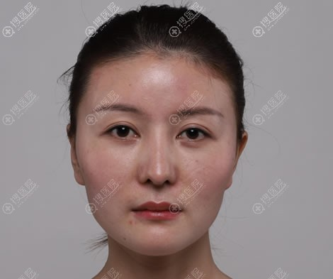 在重庆华美医院做颧骨手术前